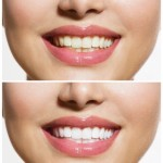 Affordable In-Office Teeth Whitening