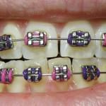 Affordable Orthodontics
